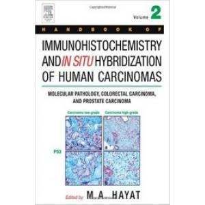 Handbook of Immunohistochemistry and in Situ Hybridization of Human Carcinomas: Molecular Pathology, Colorectal Carcinoma, and Prostate Carcinoma