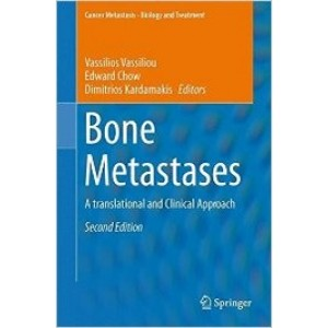 Bone Metastases: A translational and Clinical Approach